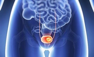 FDA批准Erdafitinib用于转移性尿路上皮癌