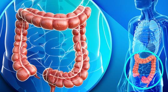美国医师协会(ACP)发布大肠癌筛查指南