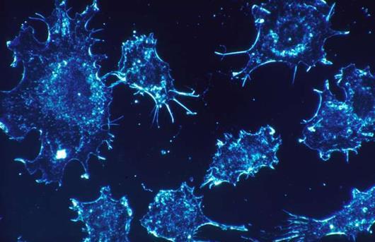 英国科学家发现结肠癌基因的复杂突变模式
