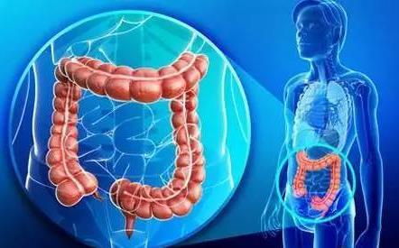 运动对晚期大肠癌患者有益