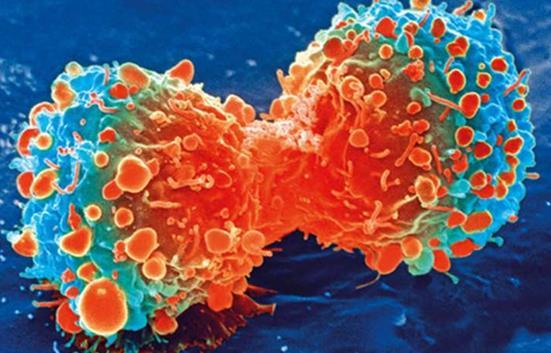 英国癌症中心:如何才是有效的癌症早期检查?