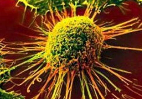 德州大学健康中心:肛门癌发病率和死亡率急剧上升