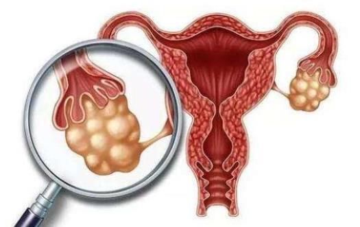 压力增加宫颈癌患者的死亡率