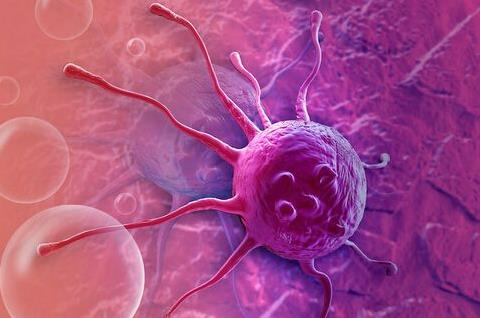 MD安德森癌症中心:TGF-β阻碍前列腺癌骨转移的免疫治疗
