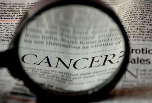 宾夕法尼亚大学:癌症导致中风死亡的风险增加了一倍以上