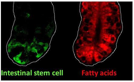 罗格斯大学:肠道干细胞基因可能与饮食脂肪和结肠癌有关