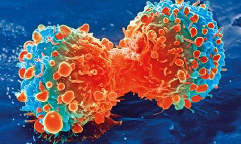 北美放射学会:热消融可有效治疗早期肺癌