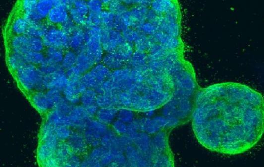 康涅狄格大学:导致三阴性乳腺癌的罪魁祸首
