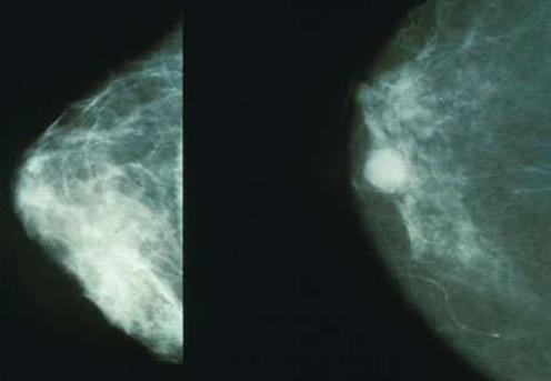 导致乳腺癌治疗耐药性的过程