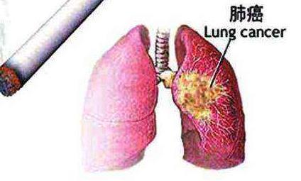 电子烟会引起肺癌吗?