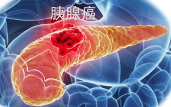 研究表明胰腺癌手术患者的生存率逐年提升
