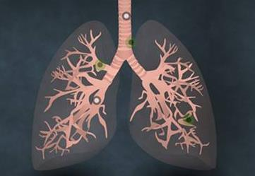 吉非替尼治疗肺癌效果怎么样