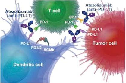 免疫疗法联合化疗可显著延长膀胱癌无进展生存期