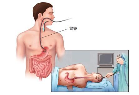非小细胞肺癌IV期的治疗