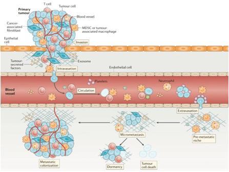 舌癌的早期症状和病因