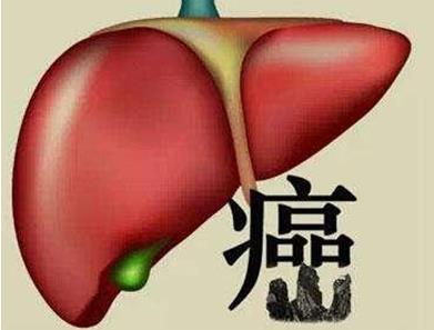 大肠癌的治疗方法