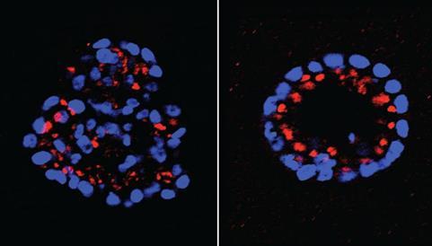 两种抗癌药的联合能够阻止带有HER2突变的癌细胞的生长