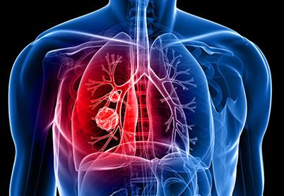 东亚人与欧洲人之间的肺癌差异