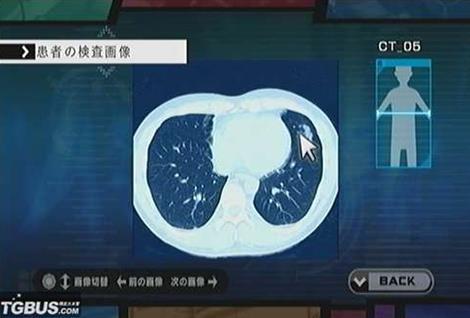癌性胸膜炎怎么治疗