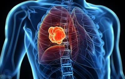 任何时候戒烟对于降低患肺癌的风险来说都不算晚