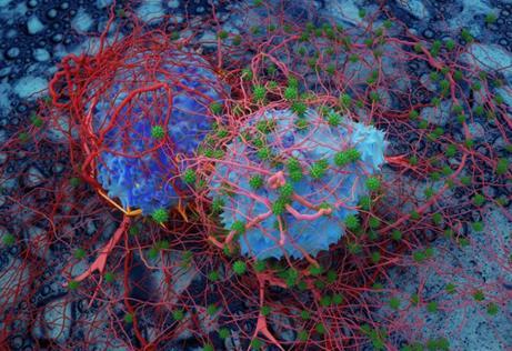 肿瘤酸度会影响癌症转移
