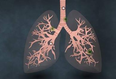 肺癌靶向新药——达可替尼