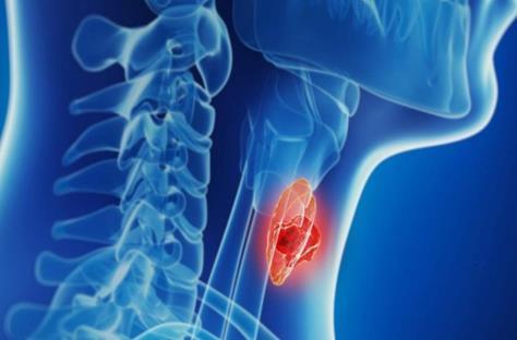 MYC驱动的淋巴瘤的新弱点