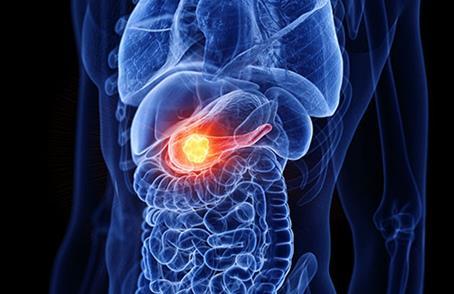 蛋白质有望成为胰腺癌治疗的新靶点