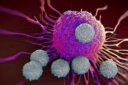 研究者使用物理工具追踪癌细胞的多样性