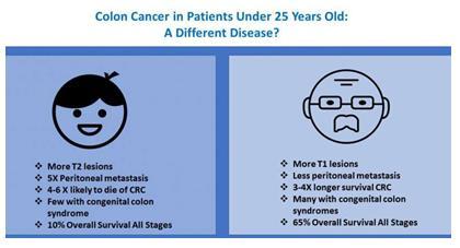 儿童结直肠癌是另一种疾病