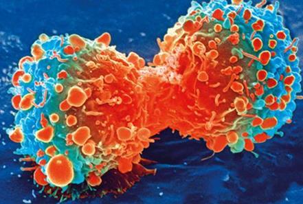 免疫治疗+SBRT,将打开PD-L1阴性患者的免疫治疗大门