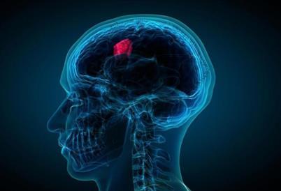 脑瘤患者术后的监视成像并不能改善预后