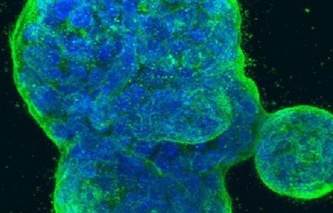 靶向篇--TP53介绍、相关治疗药物及临床研究