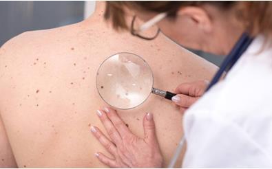 研究人员已迈出阻止黑色素瘤扩散的第一步