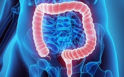 肠道干细胞基因可能会增加患结肠癌风险