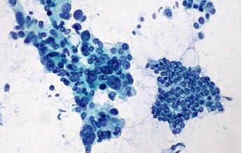 """""""无声肿瘤""""胰腺癌的研究困境"""