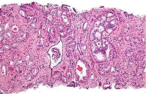 美国国家癌症研究所:新的联合活检方案可改善前列腺癌的诊断