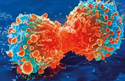 神经纤维蛋白为乳腺癌对激素治疗的抗性提供新思路
