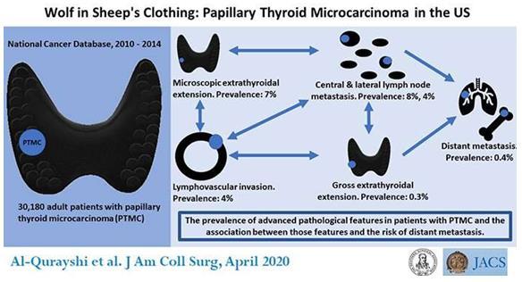 美国外科医生学院发现某些小于1厘米的甲状腺肿瘤更具有侵略性