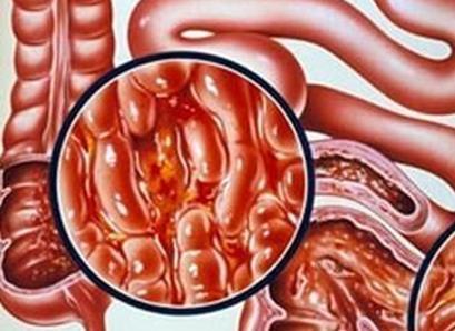 荷兰研究人员表示,使用免疫疗法治疗炎性肠道疾病,不会增加女性外阴癌或阴道癌的风险