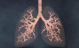 肺癌常见的十大基因突变及对应的靶向药研究进展!