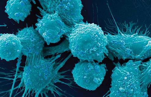 针对癌细胞的弱点将可能有效抑制癌症
