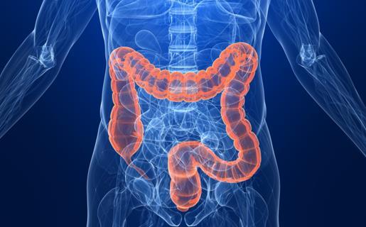 研究调查了息肉和结肠直肠癌的风险