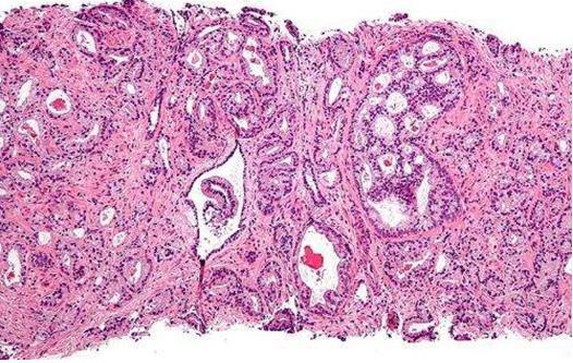 研究揭示了家族性前列腺癌的遗传起源