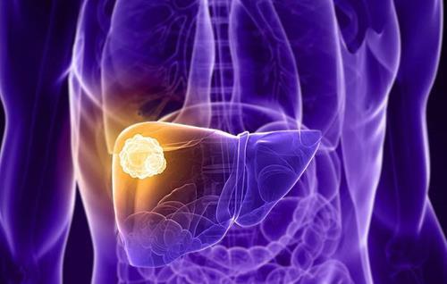 经研究发现全球肝癌的发病率正在上升