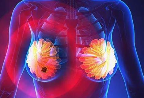 雄激素受体可阻止乳腺癌的肿瘤生长