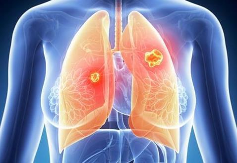 新传感器可以在早期更准确地发现肺部肿瘤