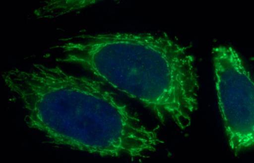 使用特定基因预测前列腺癌存活的机率更高