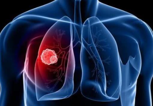 肺癌免费治疗来了