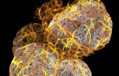 研究人员在乳腺导管中发现新型免疫细胞
